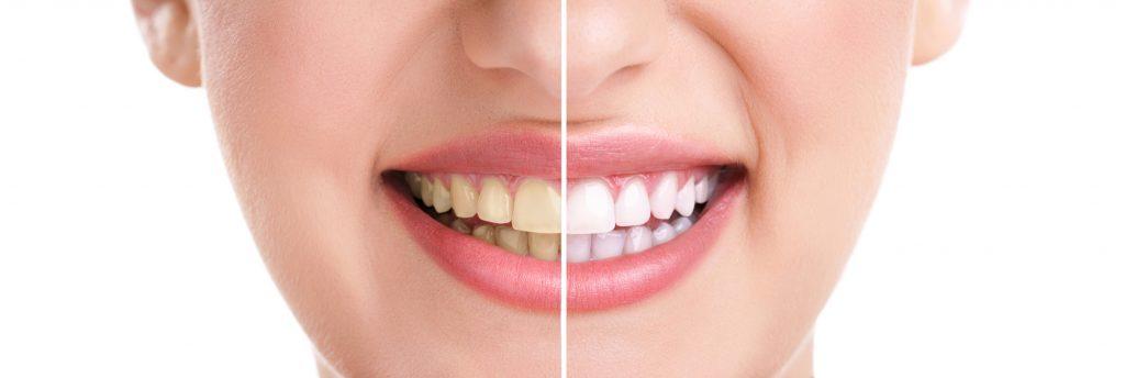 הלבנת-שיניים-ברמת-השרון