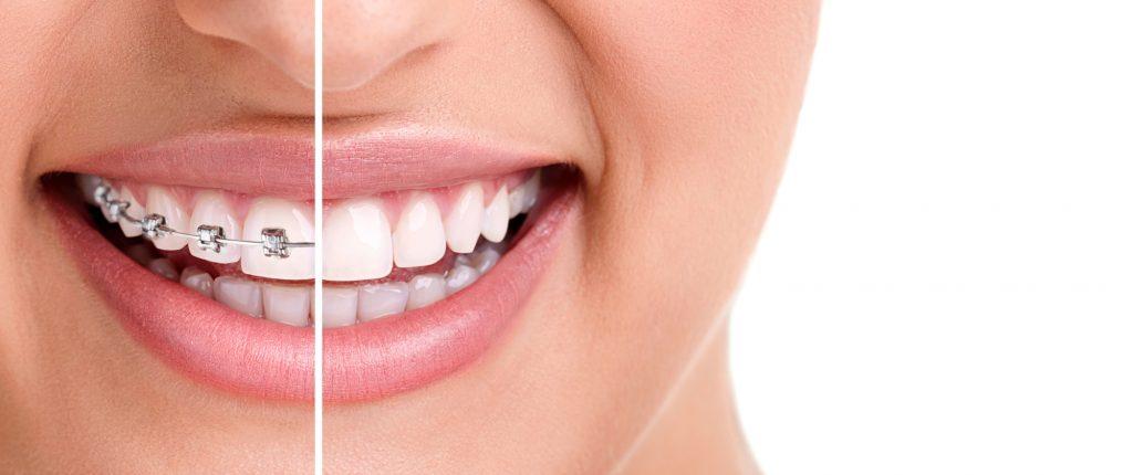 שיניים בריאות עם גשר